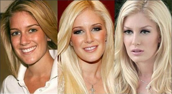 Celebrity Heidi Montag Transformation Plastic Surgery Before And After