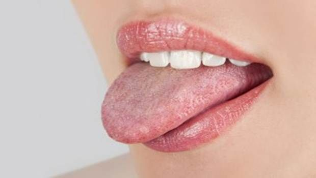 Natural home remedies for oral thrush shows ways to treat oral thrush effectively and safely at home.