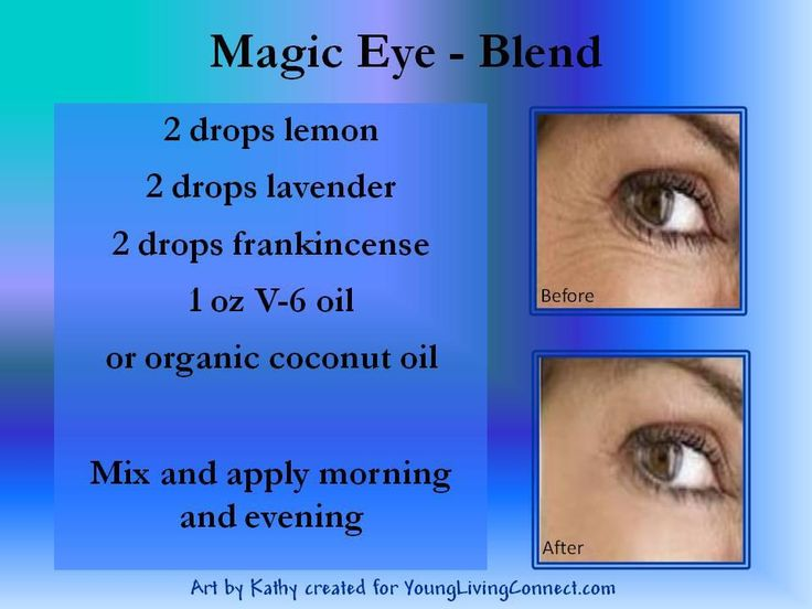 Reduce wrinkles around eyes: 2 drops Lemon, 2 drops Lavender, 2 drops Frankincense, 1 oz V-6 oil or organic Coconut oil