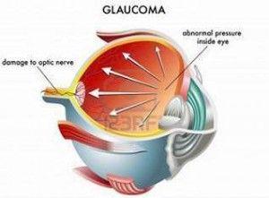 Glaukoma adalah suatu penyakit dimana tekanan di dalam bola mata meningkat, sehingga terjadi kerusakan pada saraf optikus dan menyebabkan penurunan fungsi