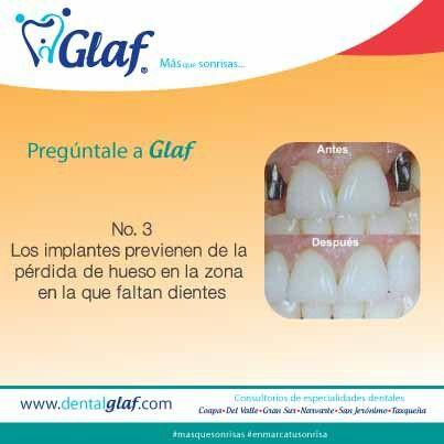 ¿Debo usar implantes dentales? Ventaja No. 3. #Glaf #dentista #df #sonrisa #familia #salud