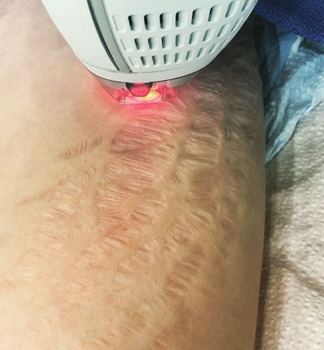 Stretch marks can dramatically change your life. Dr. Karamanoukian performs fractional laser to combat different types of stretch marks on the skin, including red stretch marks and indented stretch marks. @kareplasticsurgery #striae #striaegravidarum #stretchmarks #plasticsurgery #santamonica #beverlyhills #dr90210 #montanaavenue #lasertherapy #co2laser #pregnancy #dhourchoueir #verdun #fraxel