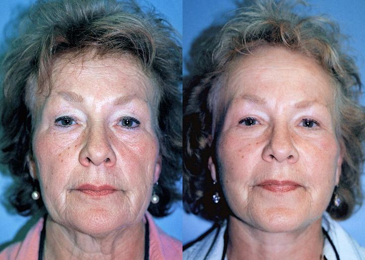 Angel free facial tightening exercises lovely