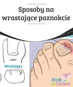 #Sposoby na wrastające paznokcie Wrastające paznokcie u stóp to dotkliwy problem. #Najczęściej dzieje się to kiedy róg #paznokcia się #rozdwaja i wrasta w skórę, powodując #zaczerwienienie i stan zapalny skóry.