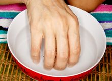 Stop Fingernail fungus safely and naturally without harsh medications.