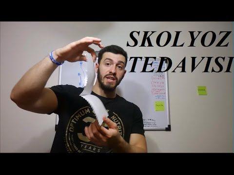 Skolyoz Nasil Duzelir   Skolyoz Tedavisi   Bilmedigin Gercek !! - YouTube