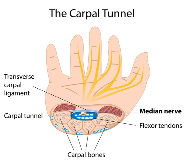 The carpal tunnel is an area in the wrist which encompasses the tendons and the median nerve, hence it has a tunnel-like structure. Carpal tunnel syndrome is caused when the tunnel gets swollen and places pressure on the median nerve.