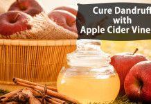 Apple Cider Vinegar for Dandruff Cure