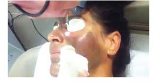 Enlarged pores solution Spectra (Laser) Peel carbon assisted peeling .