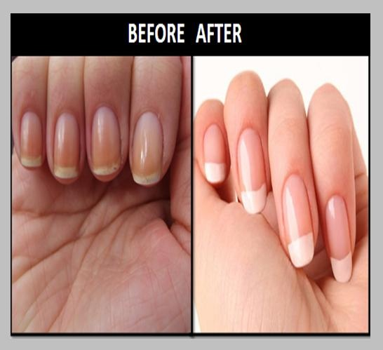 How to whiten nail tips! This one really does work.