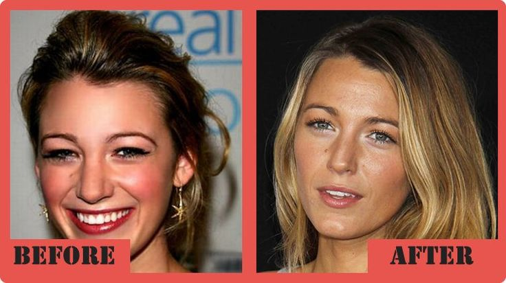 blake lively Plastic Surgery Before and After Blake Lively Plastic Surgery #BlakeLivelyPlasticSurgery #BlakeLively #celebritypost