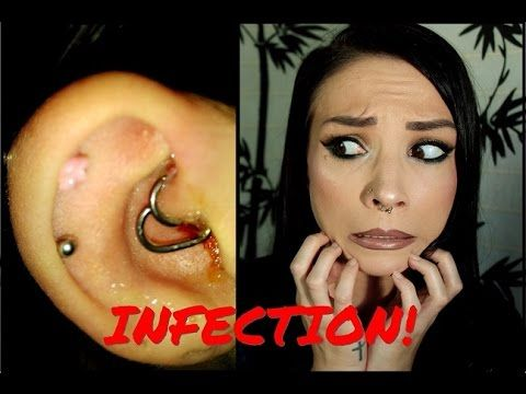Daith Piercing Infection | How I Cured It (WITH PICTURES) - YouTube