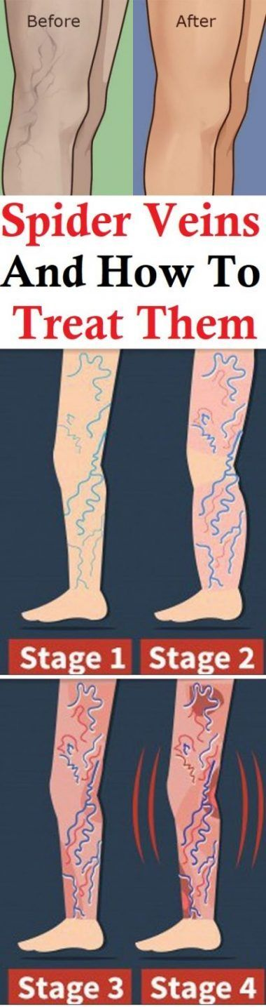 Spider Veins And How To Treat Them
