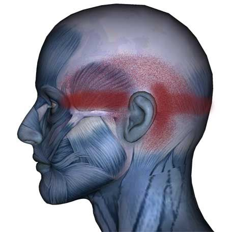 Suboccipital Muscles: Headaches, Migraines, Eye Pain - The Wellness Digest