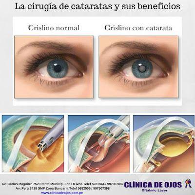 Clínica de Ojos Oftalmic Láser: LA CIRUGÍA DE CATARATAS Y SUS BENEFICIOS