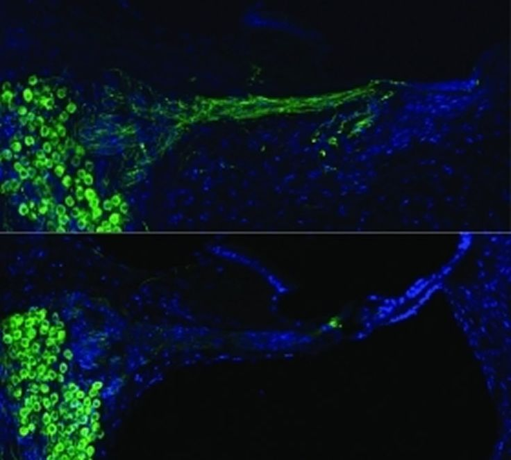 Bionic Ear Technology Used for Gene Therapy - NeuroscienceNews.com Researchers at UNSW have for the first time used electrical pulses delivered from a cochlear implant to deliver gene therapy, thereby successfully regrowing auditory nerves. Regenerated auditory nerves using gene therapy (top), control below. Credit UNSW.