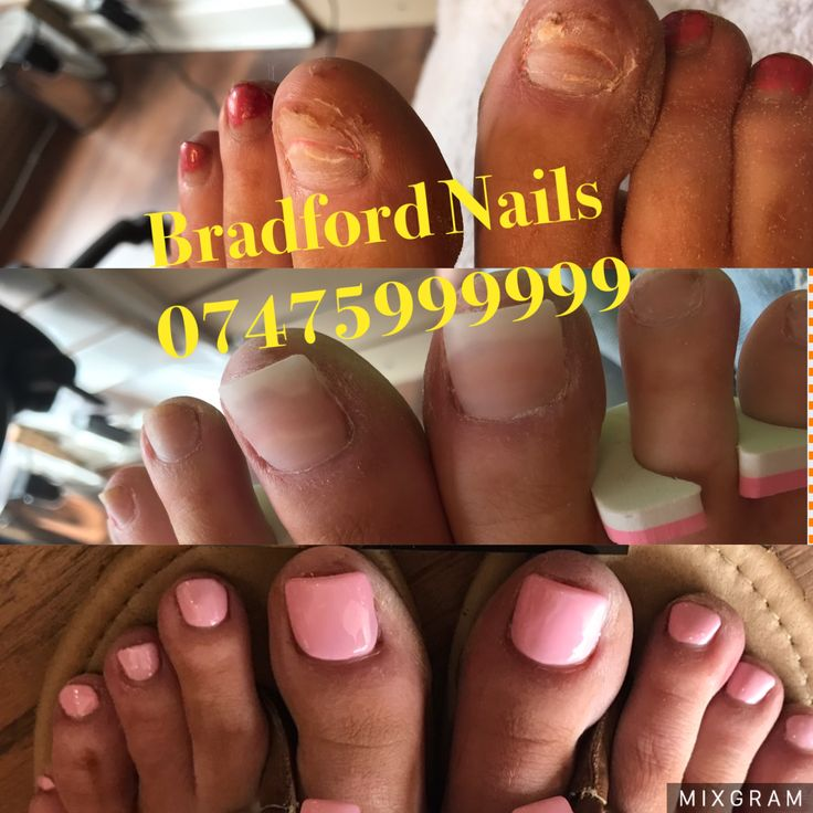 Show feet now  Not only on hands, we are perfect in doing feet  Why hide toenails, we help you to show them beautifully  We fix broken toenails, help toenails growing, fix missing toenails, fix ruined toenails,  even build toenails if you have no toenails