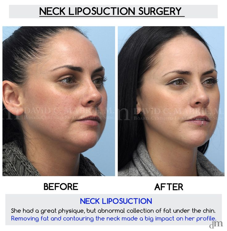 Excellent surgical #lipo results by Dr. David Mabrie!   #anatomy #drmabrie #beauty #beautiful #liposuction #chin #waddle #fat #chinfat #turkeyneck #surgery #plasticsurgeon #plasticsurgery