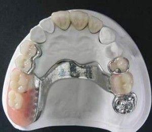 Prótesis dentales removibles - Dentisalut