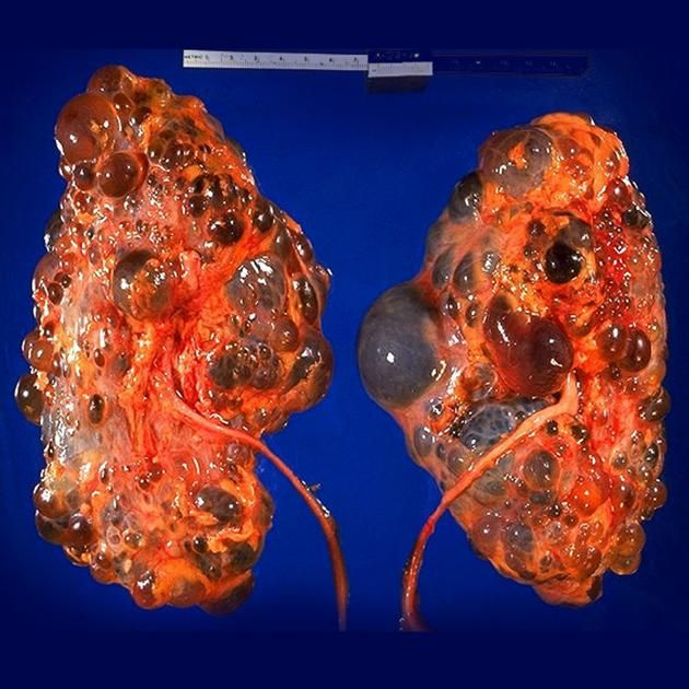 Adult polycystic liver disease