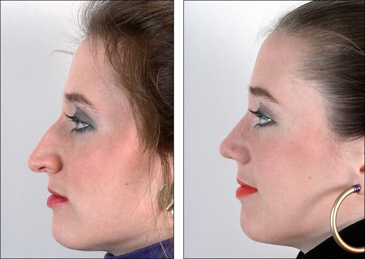 how to make my nose look less pointy with makeup