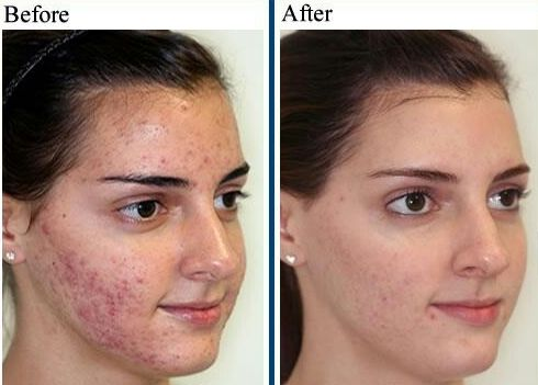 Rodan+Fields Unblemish for acne. AMAZING results ...