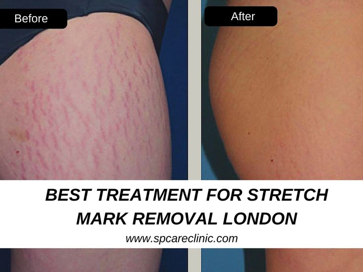 Have you got stretch marks? Don't worry, the Sp care clinic gives you relief from stretch marks with MNS Roller (IPL/laser). The SP care clinic is most recommended Clinic for best treatment for stretch mark removal in Birmingham London. For an appointment, call us: 02074869891 or visit: www.spcareclinic.com