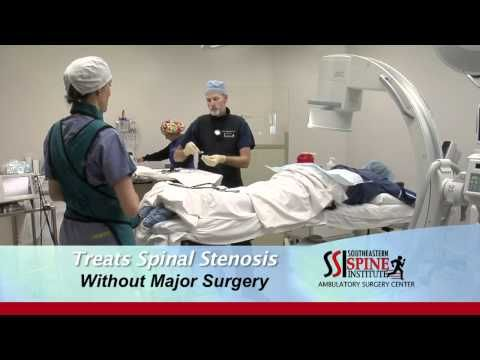 The MILD Procedure at The Southeastern Spine Institute