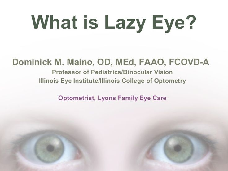 What is lazy eye? by Dominick Maino via slideshare