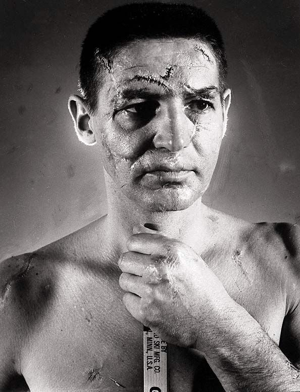 Goaltender Terry Sawchuk's face - Played from 1945-59 without a mask (before goaltenders wore one!) Sawchuk lived a hard life suffering from countless injuries, alcoholism and depression, and died at the age of 40)  http://en.wikipedia.org/wiki/Terry_Sawchuk