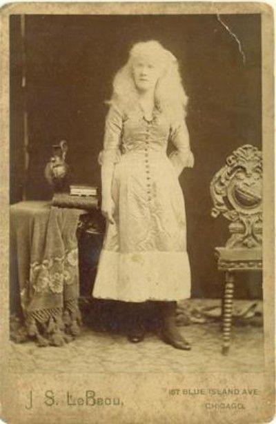 Pretty Albino Woman Mind Reader Millie Lamar C1880