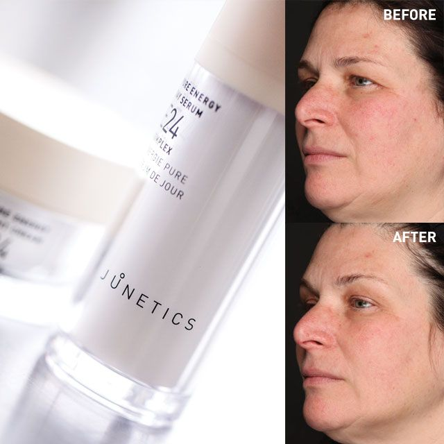It's amazing what Junetics can do to the skin in 30 days or less. Here's a peek at Kate's before and after photos. Real people, real skin, real results: www.myconcoria.com/2044