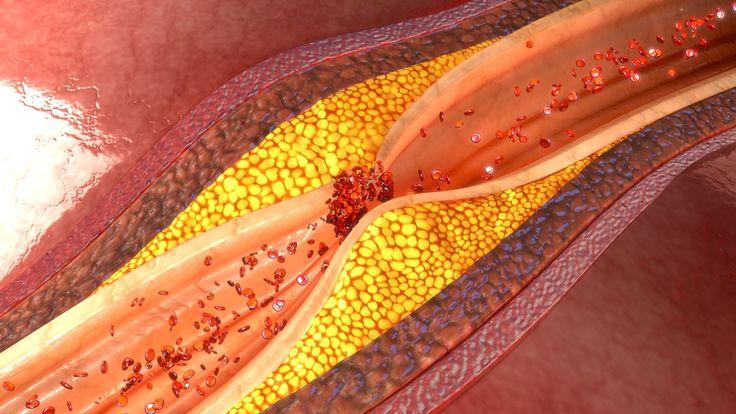 Cholesterol je esenciálnou súčasťou každej bunkovej membrány
