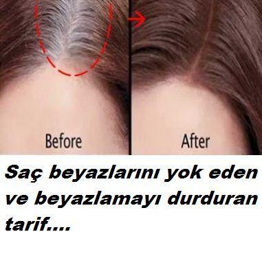 Bu tarifle saç beyazlaması derdine son.Beyazlayan saçları eski haline döndüren ,saç beyazlamasını durduran tarif