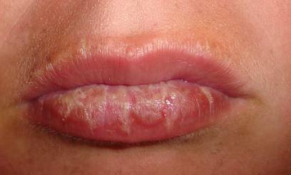 sunburned lips symptoms, honey as a remedy