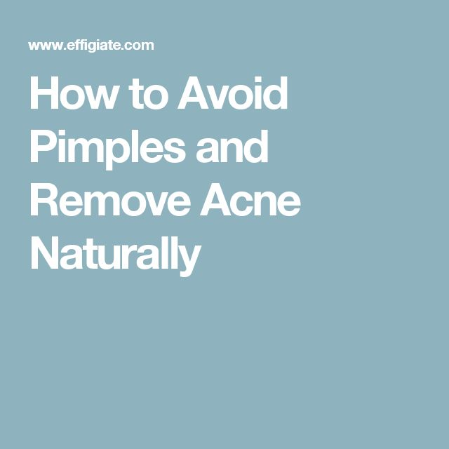 How to Avoid Pimples and Remove Acne Naturally