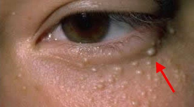 A szemek alatti kis zsírcsomók elsősorban esztétikai problémát jelentenek, amiktől azért érdemes megszabadulni, mert ezáltal magabiztosabbak lehetünk, és szebbnek is érezhetjük magunkat. A zsírcsomók inkább a felnőttek esetében szoktak gondot okozni, de újabban gyakran előfordul a gyerekeknél is. A következő készítménnyel búcsút inthetünk ezeknek a kellemetlen kis pöttyöknek, anélkül, hogy orvoshoz fordulnánk. Mit kell tennünk? […]