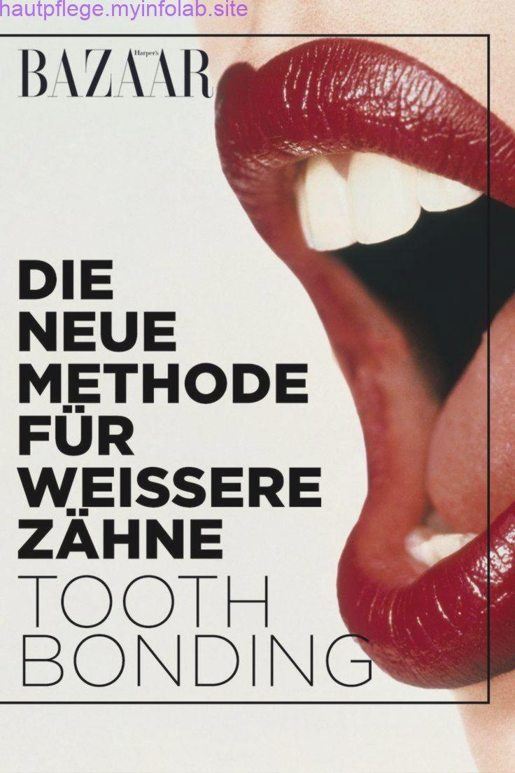 Tooth Bonding ist die neue Methode für weißere Zähne