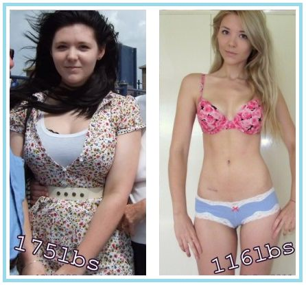 Loss weight in teens Obeasity and