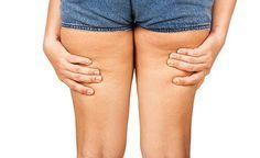 Ihre Oberschenkel, Ihr Bauch oder auch Ihr Po weisen nicht mehr die Festigkeit auf, die Sie sich wünschen? Sie möchten Ihre Orangenhaut beseitigen? Wir zeigen Ihnen, wie Sie Ihre Silhouette sichtbar festigen und straffen können. Cellulite ist eine Verschlackung des Bindegewebes.
