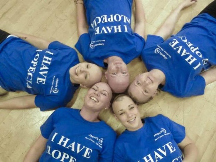 """""""Ever since becoming part of Alopecia UK, the organisation has helped me realise that there are so many people out there who have gone through some of the same experiences as me and it's an amazing feeling."""" – Joelle Amery""""The best support that I get is from my friends that I've made through Alopecia UK – they understand what it's like to have alopecia. Being able to discuss something with people that have experienced the same thing will always be a great source of support for me."""" – Kate…"""