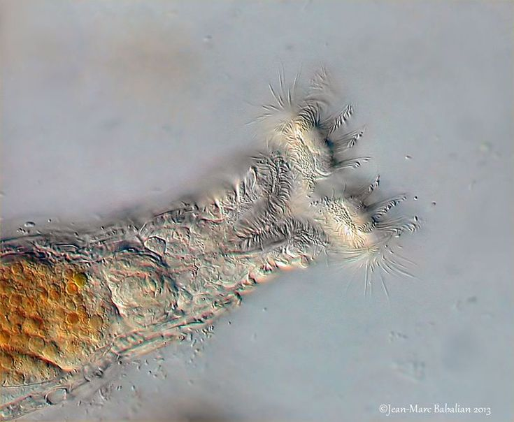 www.photomacrography.net :: View topic - Bdelloïd rotifer new pics