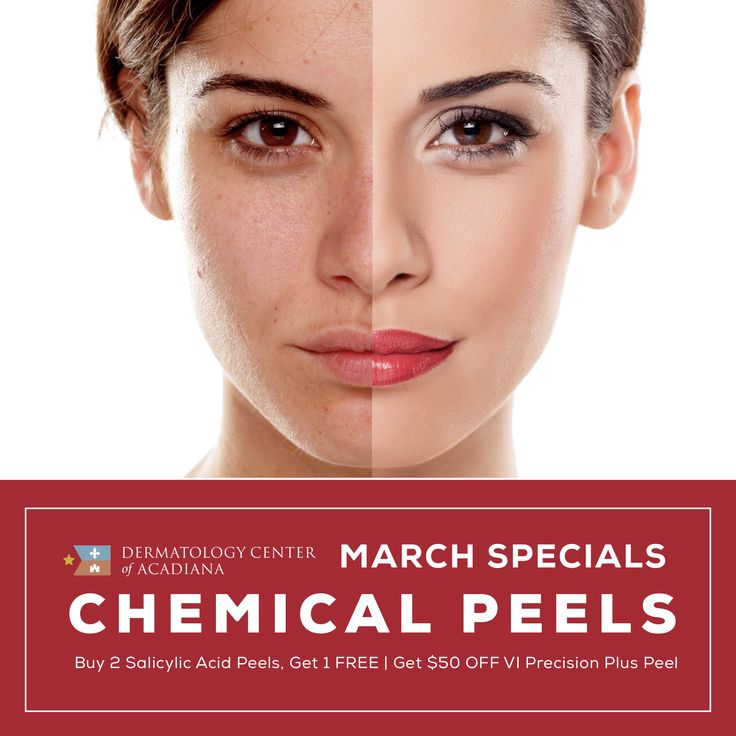 💆🏻Today is the LAST DAY to take advantage of our March Specials on CHEMICAL PEELS! ✅ Buy 2 Salicylic Acid Peels and Receive 1 FREE ✅ Receive $50 OFF a VI Precision Plus Peel ☎️ Call (337) 235-6886 to make an appointment or ask us anything about these popular skin treatments -- we're here for you! ☺️