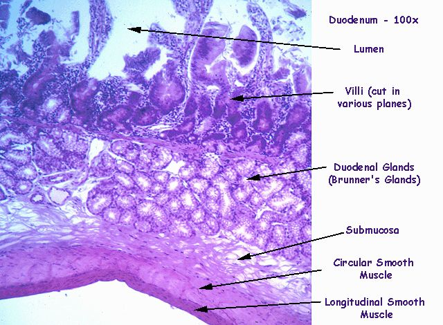 histological slides of the duodenum - Google Search | A ...