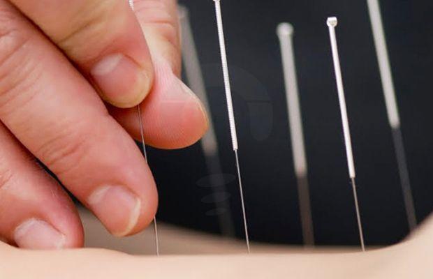 Membentuk tubuh dengan cara akupuntur dengan ahlinya bersama Klinik Dr Melisa. Diskonnya bisa kamu dapatkan disini
