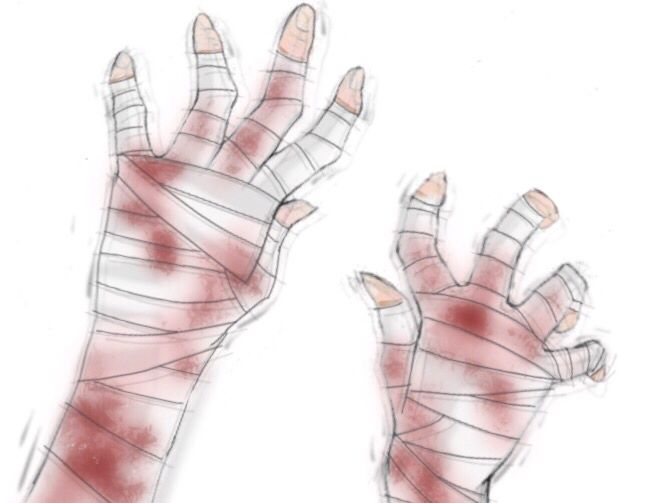 Broken hands, drawing, reference, hand wrap, bandaged hands, blood, shaking hands, hurt, anime, crippled