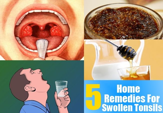 Remedies For Swollen Tonsils