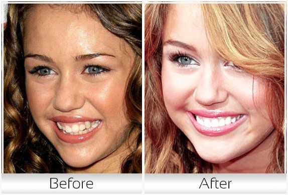 Miley Cyrus   Celebrity Smiles   Tooth extraction aftercare