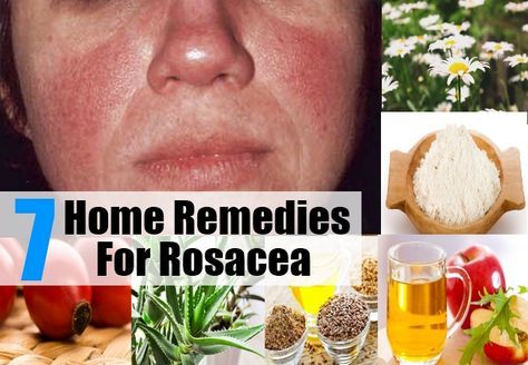 7 Home Remedies For Rosacea - Natural Treatments & Cure For Rosacea | Health Care A to Z