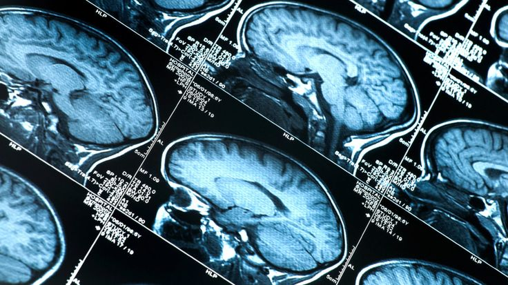 #Alzheimer's Diagnosis Expanding To Catch Early Warning Signs